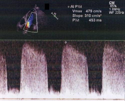 Measurement of pressure half time in aortic regurgitation
