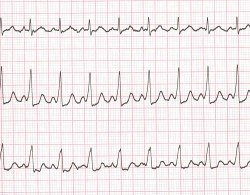 WPW syndrome ECG – Disappearance of pre-excitation