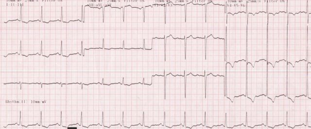 left ventricular hypertrophy  lvh  with strain pattern  u2013 all about cardiovascular system and