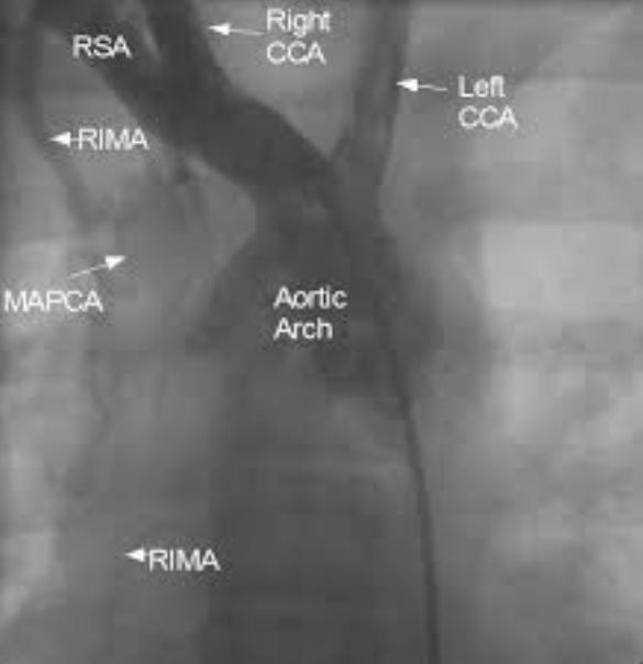 MAPCA from right internal mammary artery
