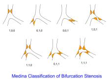 Medina classification