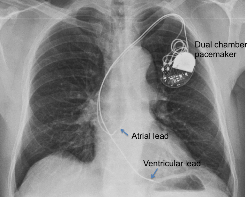 Dual chamber pacemaker - Chest X-ray