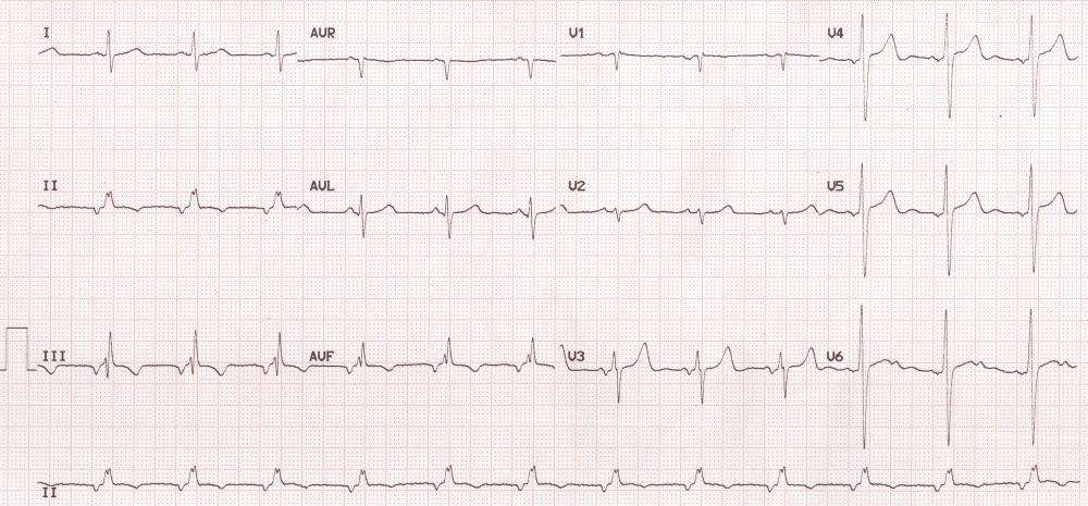 Low atrial rhythm – ECG