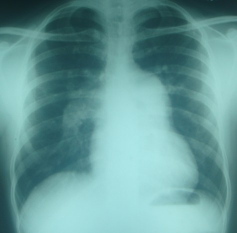 X-ray chest PA in atrial septal defect