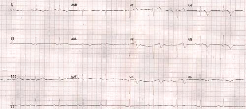 AWMI, RBBB, Sinus bradycardia - RBBB resolved
