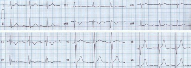 ECG after surgical closure of ASD