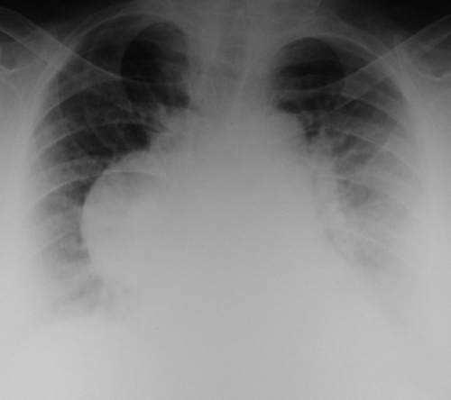 X-ray chest PA view in aortic aneurysm