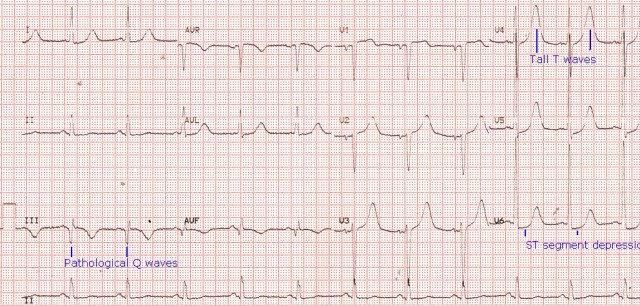 Old inferior wall infarction and lateral ST depression