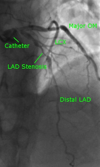 lad-stenosis