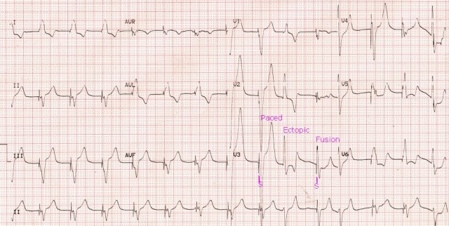 VVI pacing with ectopic beat and fusion beat