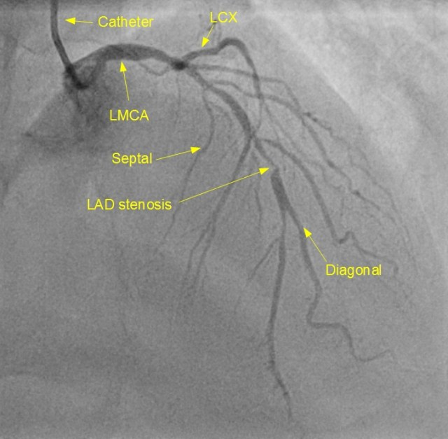 Left coronary angiogram