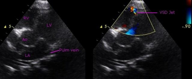 Small muscular ventricular septal defect - echocardiogram