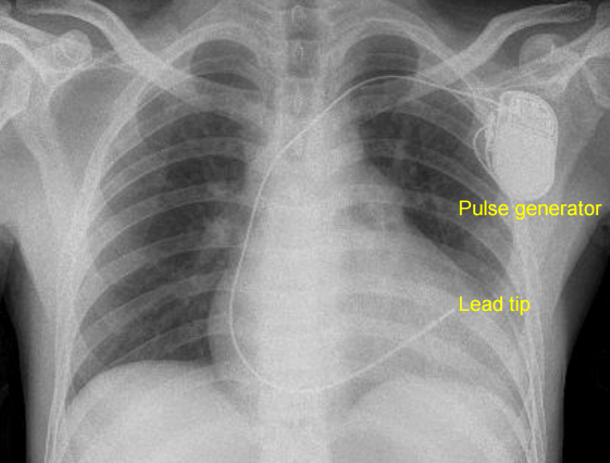 Septal pacing - X-ray chest PA view