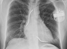 Chest X-ray showing implantable cardioverter defibrillator