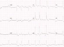 Left main coronary artery disease on ECG