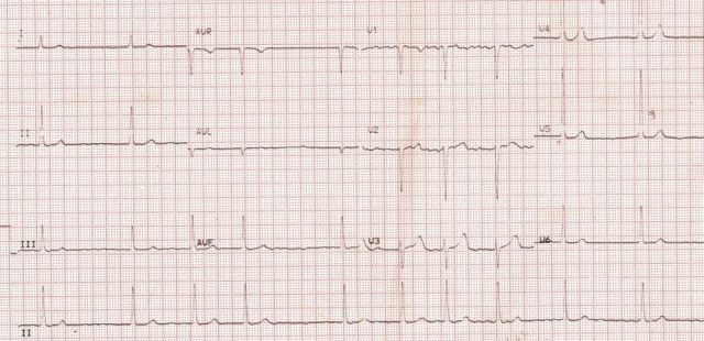 Atrial fibrillation with slow ventricular rate