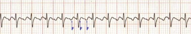 Atrial flutter with 2:1 conduction