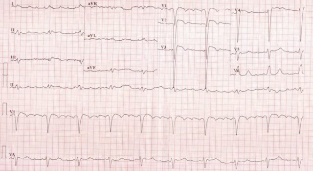 Atrial flutter with 4:1 conduction