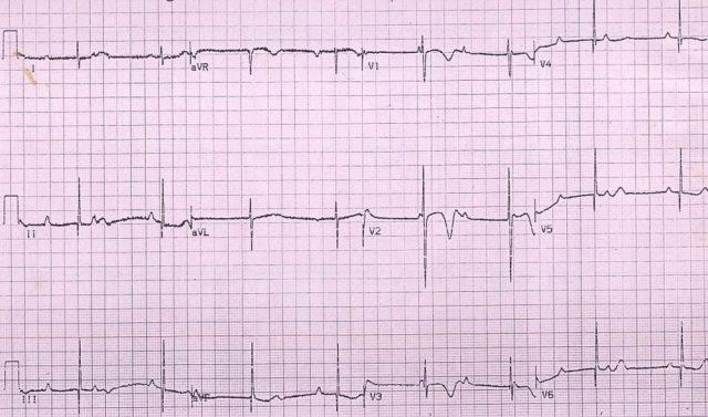Congenital complete heart block