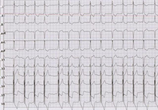 ECG in hypertrophic cardiomyopathy with atrial fibrillation