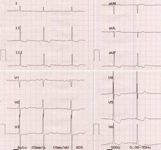 ECG showing atrial fibrillation with slow ventricular rate and left ventricular hypertrophy