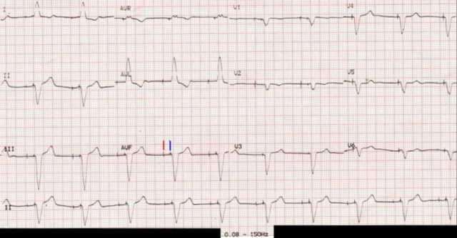 ECG with filter range 0.08 – 150 Hz – pacemaker spikes visible