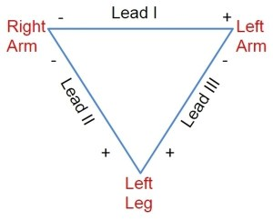 Electrode combination for limb leads