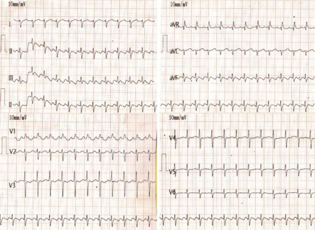 Neonatal atrial flutter with 2:1 conduction
