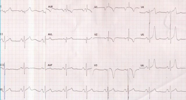 P mitrale and right ventricular hypertrophy