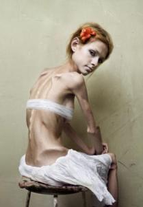 bulimia-anorexia