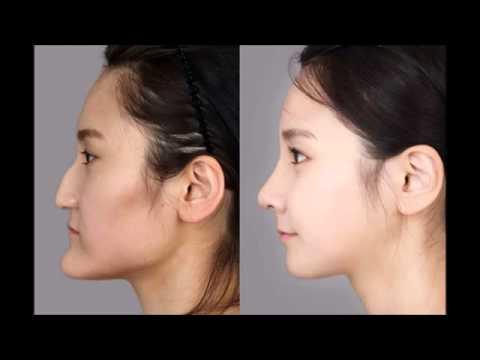 【閲覧注意】韓国の美容整形がもはや人体改造レベル!? #トレンド #followme