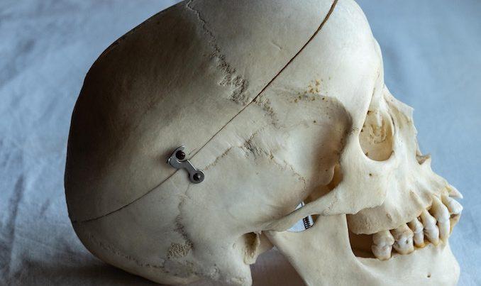 head fix Jonathan Chase Hypnotist