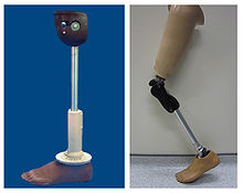 220px-Low_cost_prosthetic_limbs
