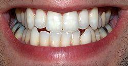 250px-Teeth_by_David_Shankbone