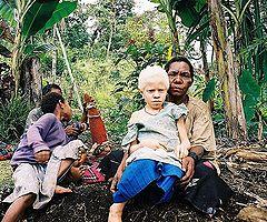240px-Albinistic_girl_papua_new_guinea