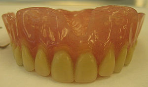 300px-Mr._M's_Complete_Denture1