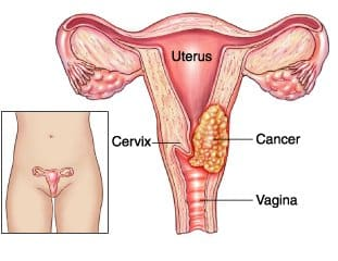 Cancer of the Cervix -