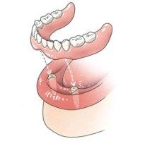 Prothese op implantaat