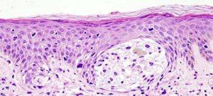 Experimento identifica novo alvo para o tratamento de melanoma