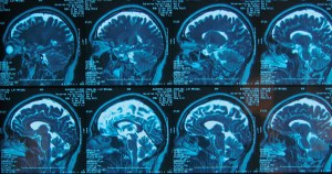 Hormônio ouabaína tem efeito protetor em células cerebrais