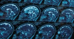 Especialista comenta as novas resoluções sobre morte cerebral