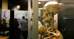 Museu expõe a beleza do corpo em membros, órgãos e cadáveres