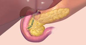Biossensor pode auxiliar detecção precoce de câncer de pâncreas