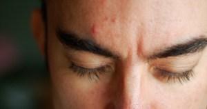 Pesquisa da USP busca homens com acne para testar cosméticos