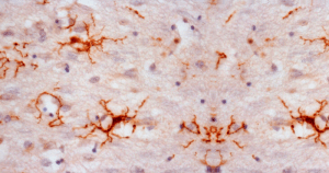 Células de apoio do sistema nervoso ajudam a entender o Alzheimer