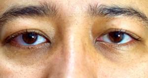 Olhos cansados, um desconforto causado pela tecnologia