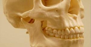 Terapia com uso de laser pode melhorar dores na mandíbula
