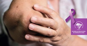 Brasil registra quase 12% dos casos de hanseníase do mundo