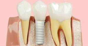 Pessoas com implantes dentários doentes podem fazer tratamento na USP