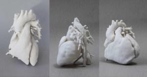 Cardiopatia congênita engloba grupo com mais de 40 tipos de doenças no coração